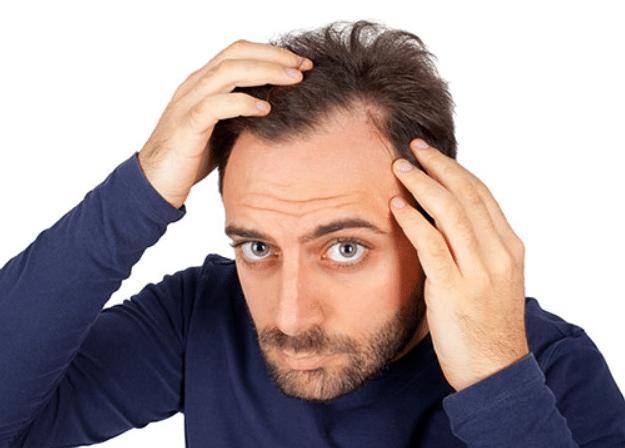 ゴリラクリニックの毛髪再生治療は発毛に効果あり?料金設定はどれくらい?