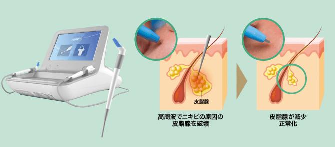 ゴリラクリニックの皮脂腺破壊