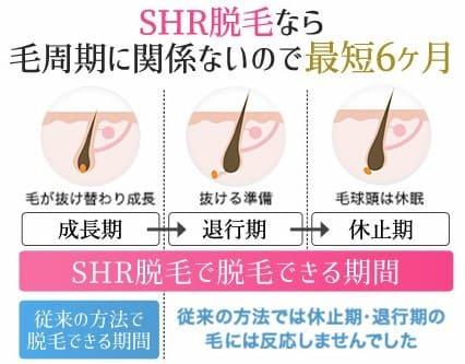 SHR脱毛の強み